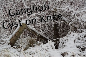Post image for Ganglion Cyst on Knee